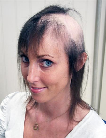 When psoriasis appears on the scalp, hair loss can occur if the psoriasis isn't treated or managed correctly 2