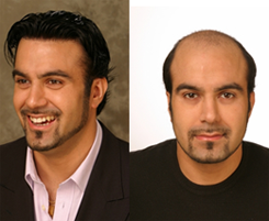 hair loss treatment for men in dubai