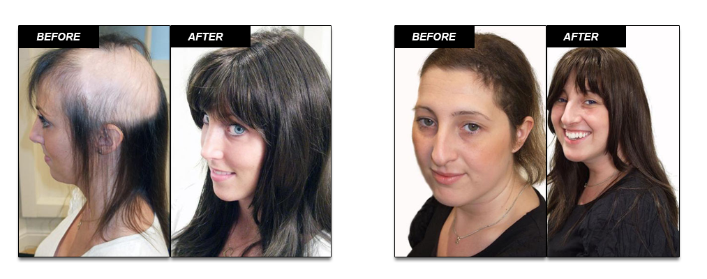 Non Surgical Hair Treatment